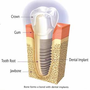 Illustration of a dental implant that you can receive at Drake and Wallace Dentistry.