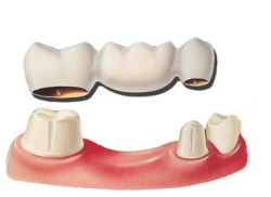 An illustration of a dental bridge like the ones Decatur's Drake and Wallace dentistry might use for their zirconia dental bridges.