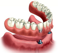 An illustration of a snap-on implant overdenture.