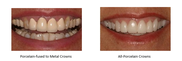 Porcelain Fused To Metal Crowns Problems - slidedocnow