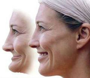 Two images of the same woman: one before facial collapse and one after