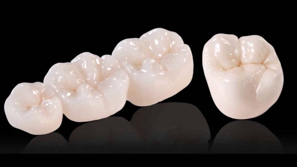 E-Max Metal-Free Dental Crowns