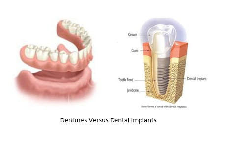 dentures (left) dental implant (right)