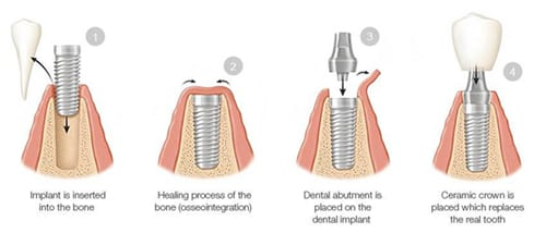 A diagram of four phases of the dental implant process, including placement, healing, abutment placement, and restoration with a ceramic crown; from Drake and Wallace dentistry in Decatur, AL.