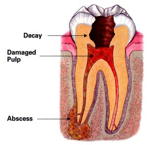 diagram of an infected tooth