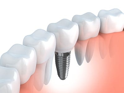 Image of a dental implant in the arch of teeth
